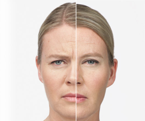 before and after anti-wrinkle botox cosmetic treatment, injection