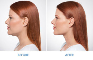 KYBELLA Before and After Chin Reduction
